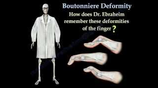 Boutonniere Deformity - Everything You Need To Know - Dr. Nabil Ebraheim