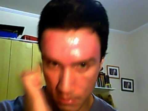 50% TCA Peel - The Results - Day 5 - Trying to get rid of acne scars and melasma