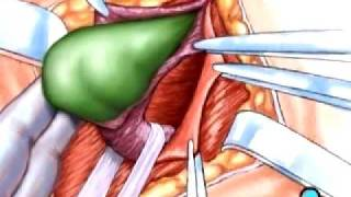 PreOp® Patient Education:  Hernia Repair Inguinal Surgery 1