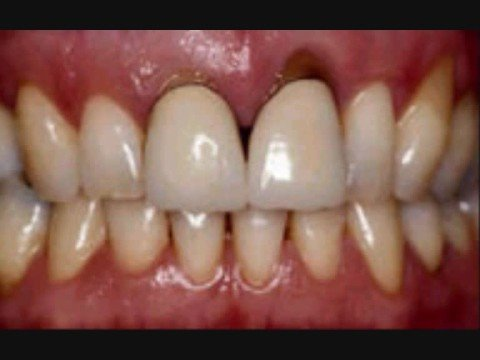 Cosmetic Dental Surgery: Beautiful results from Belgium
