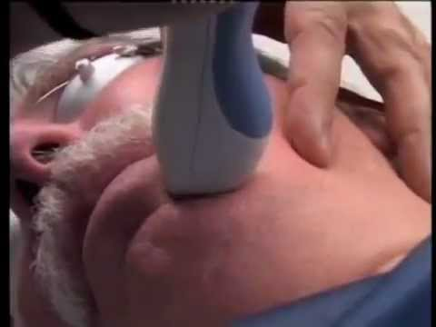 Acne Scar Removal & Raised Scar Removal with Laser Treatments