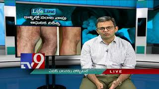 Varicose Veins || Latest Treatment || Life Line
