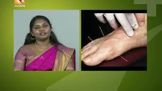 അക്ക്യുപഞ്ചറും ചികിത്സയും |  Health News:Malayalam |17th Oct [ 2018 ]