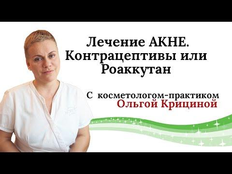 Лечение АКНЕ. Контрацептивы или Роаккутан