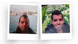Hair Transplant Before After Dr.Serkan Aygin Clinic
