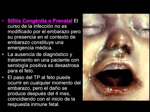 ENFERMEDADES DE TRANSMISIÓN SEXUAL (UNIVERSIDAD AUTÓNOMA DE TLAXCALA)