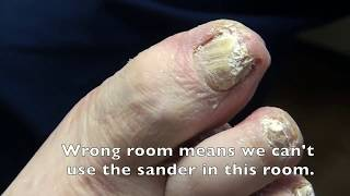Thickest Nails on the Net - Dr. Nail Nipper