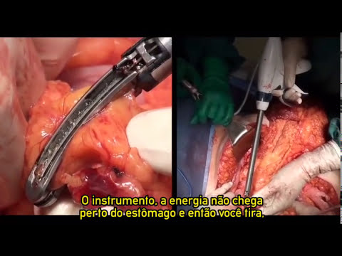Histerectomia total abdominal com ENSEAL® G2 Super Jaw