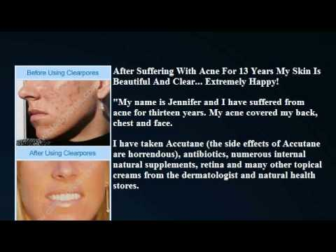 ClearPores Review-Why Clearpores is the #1 Acne Product on the Market