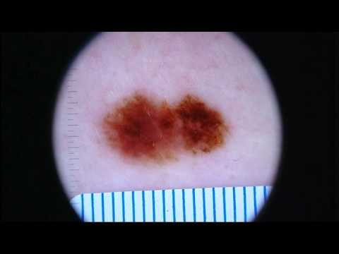 New breakthrough in skin cancer treatment