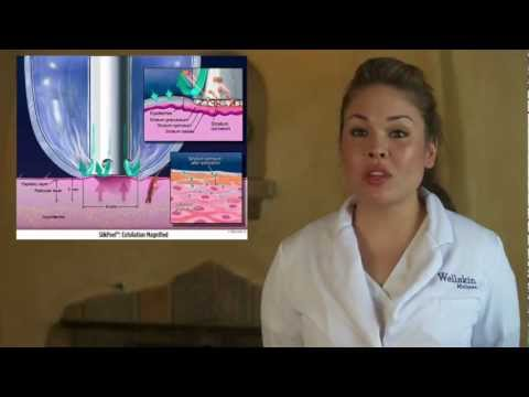 Improve Acne, Skin Discoloration, Fine Lines with Silk Peel