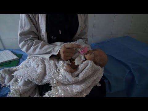 Hospital staff saves newborns after Aleppo air strike