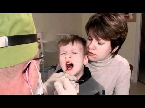 0 - Лікування хронічного тонзиліту – Чи можна позбутися від нього назавжди 2019