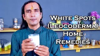 Treat White Spots On Skin With Home Remedies by Sachin Goyal @ ekunji.com