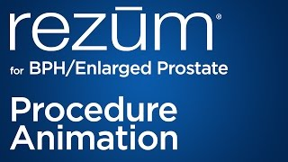 Rezūm for BPH/Enlarged Prostate | New BPH Treatment from Urology San Antonio