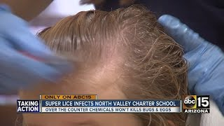 Super lice sweeping through schools in the North Valley