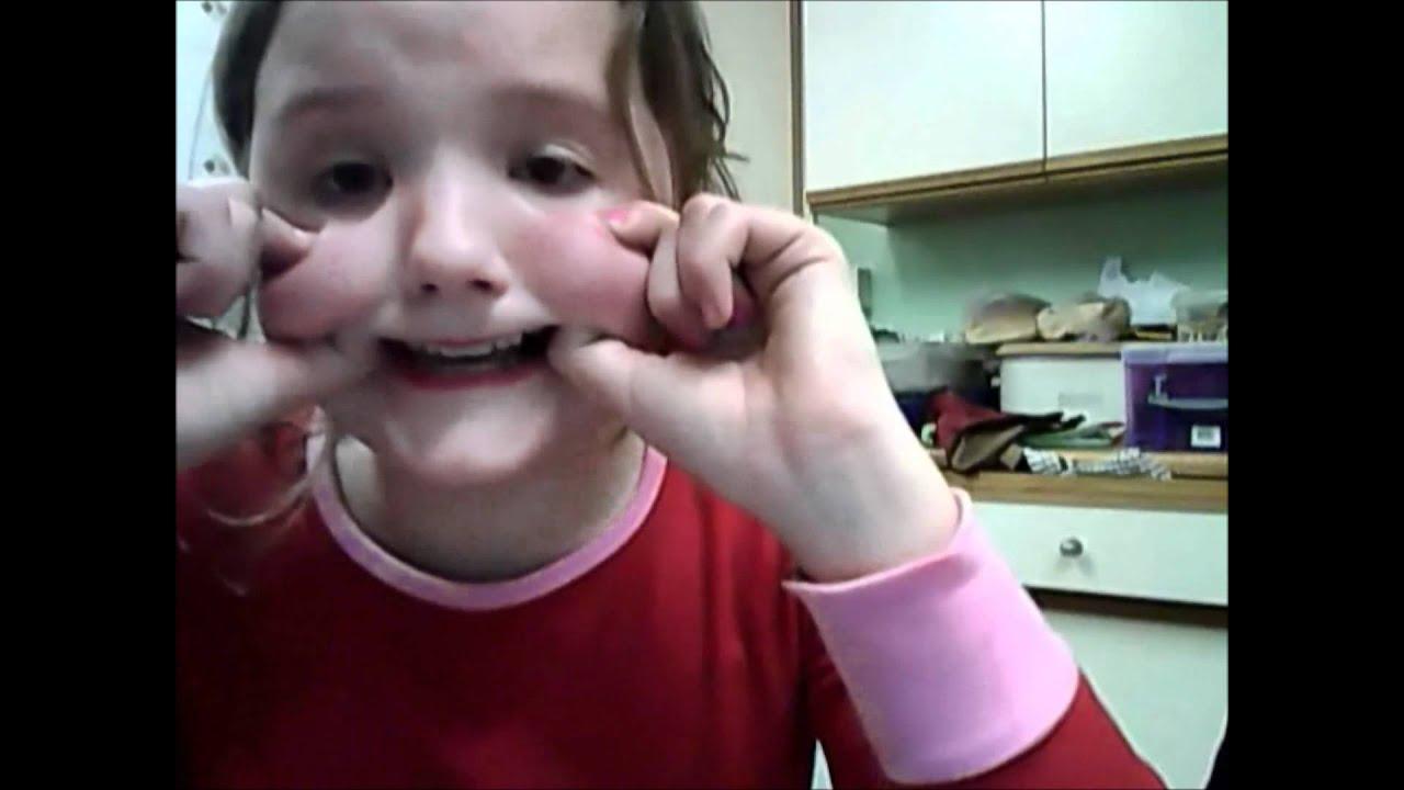 Botox gone wrong ! - YouTube