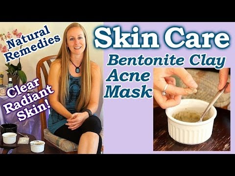 Natural Remedies for Acne, Skin Care for Beauty & Health with Bentonite Clay, Acne Mask