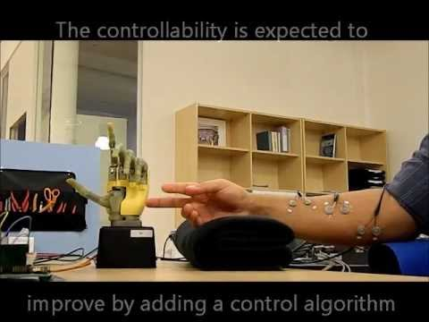 Myoelectric control of individual fingers in a hand prosthesis, initial testing