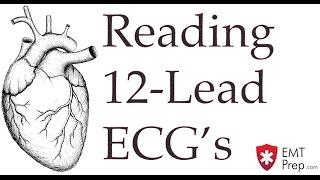 Reading 12-Lead ECG's - EMTprep.com