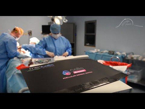 Profilaktyczne Amputacje Przy Mutacji BRCA1 Z Jednoczasową Rekonstrukcją Z Użyciem ADM - PRSP