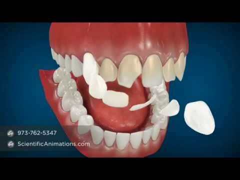 Cosmetic Dentistry Procedures - Dental Animation
