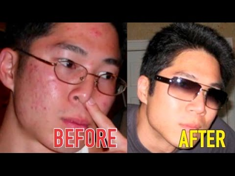 How To Clear Your Acne | My Before and After Acne Pictures HD
