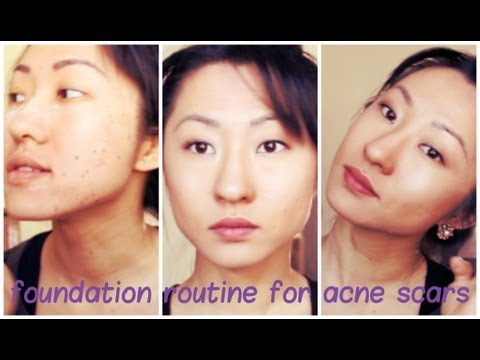 HOW TO HIDE ACNE SCARS   DAISERZ89