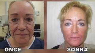 Yüz Germe (facelift) Ameliyatı
