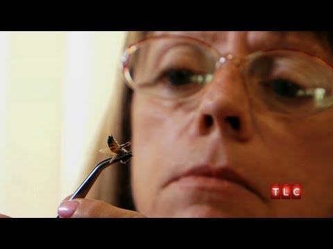 Addicted to Bee Stings | My Strange Addiction