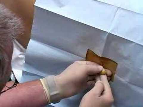 Lumbar Puncture (sample) - www.proceduresconsult.com