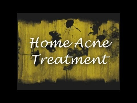 Home Acne Treatment