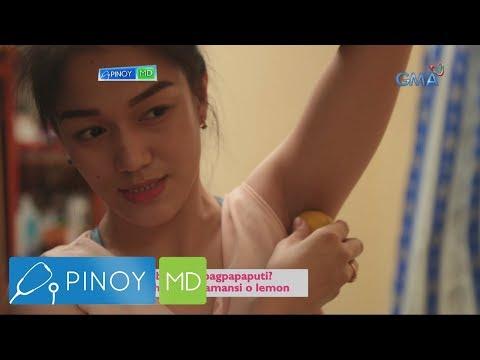 Pinoy MD: Maitim na kili-kili, tuhod at siko, ano ang solusyon?