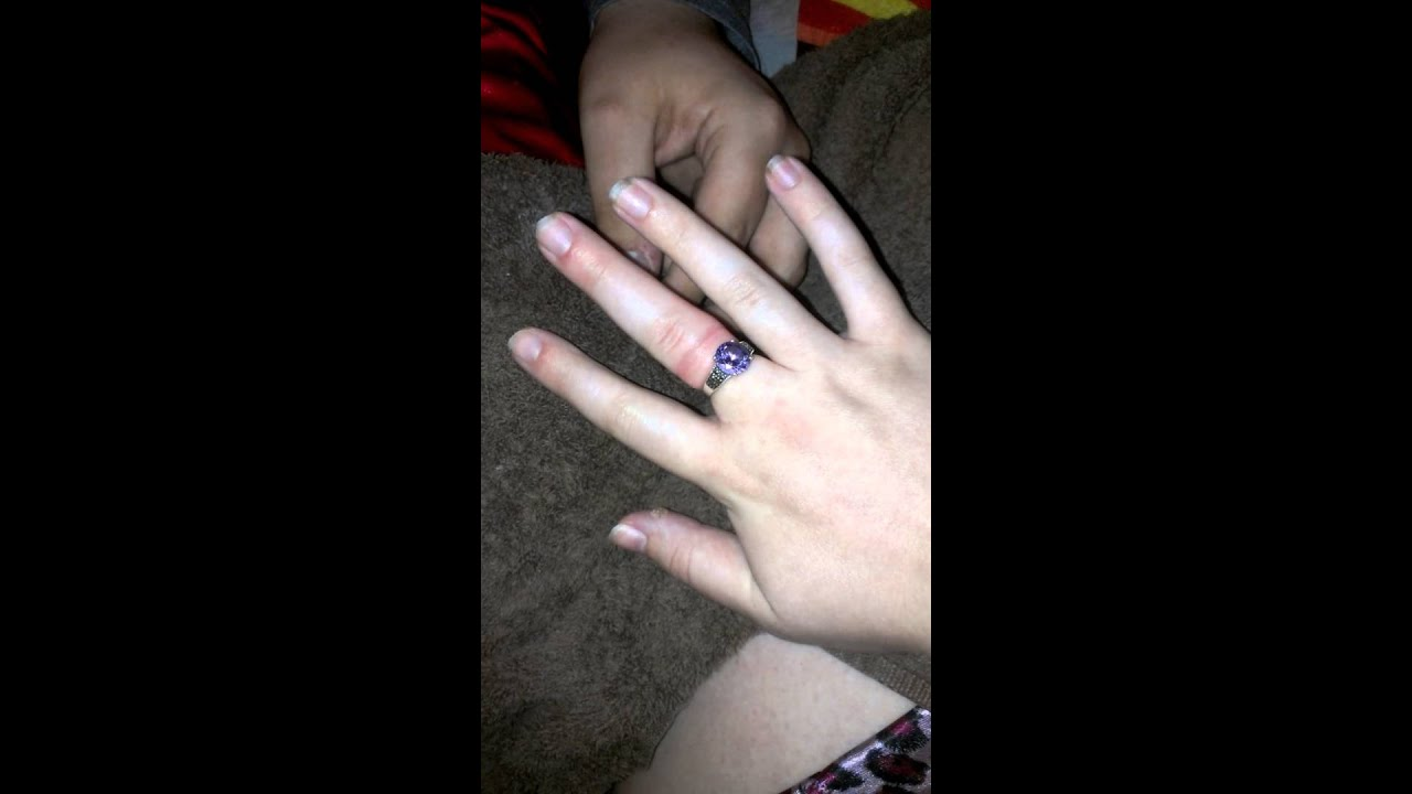 How To Get A Ring Off Finger That Is Swollen