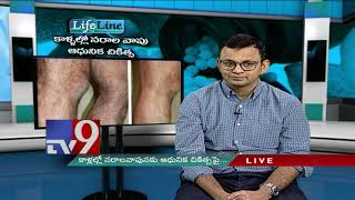 Varicose Veins: Latest Treatment || LifeLine ||