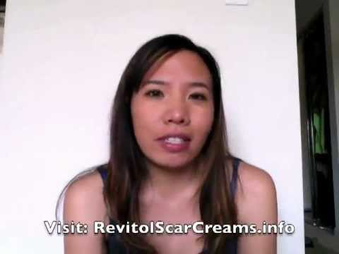 Revitol Scar Cream Review-Best Acne Scar Treatment