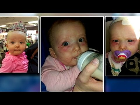 Babysitter accused of child abuse