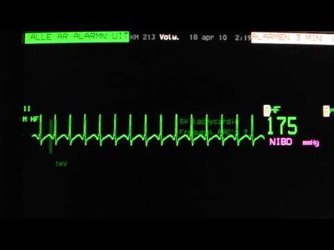 AV nodal re-entry tachycardia (AVNRT) on an ECG heart monitor