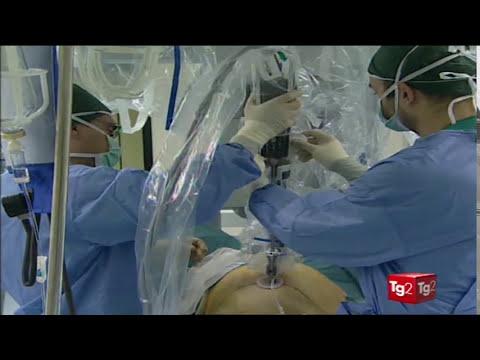 La chirurgia robotica nella ginecologia oncologica, il Prof. Enrico Vizza a Medicina33