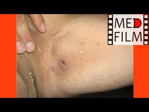 Грибок промежности у мужчин и его лечение