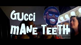 "Bai Boi ""Gucci Mane Teeth"" 