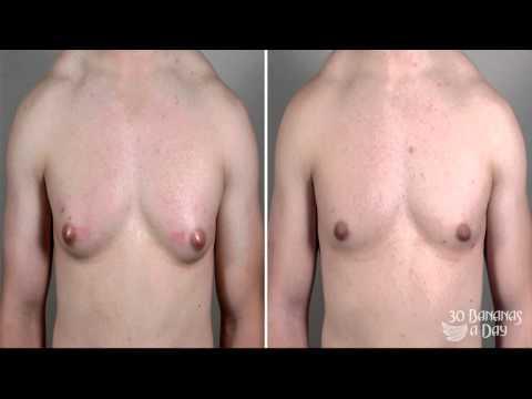 How To Get Rid of Man Boobs (high estrogen)