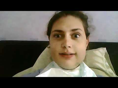 A funny little video after my bi jaw surgery for overbite/overjet