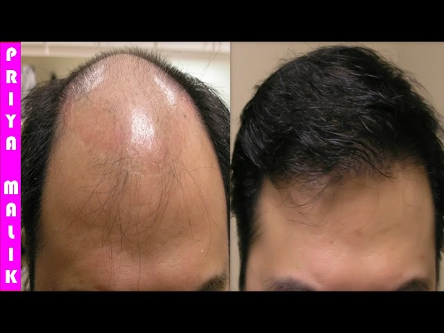 Grow Long Hair, 100% Natural Hair Loss Treatment, Cure Baldness, Remove Dandruff Thin Hair Hair Fall