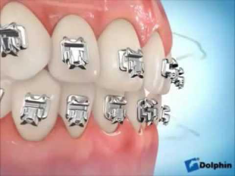 ทำฟัน VDO อธิบายวิธีการจัดฟันแบบ Damon