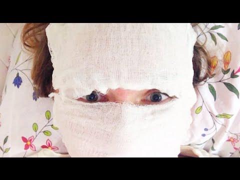ПОСТАКНЕ и лазерная шлифовка: боль, эффект марли и пр.