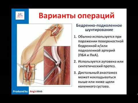 Атеросклероз сосудов нижних конечностей лечение