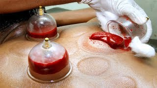 Cupping Therapy || what is Cupping Therapy ?????