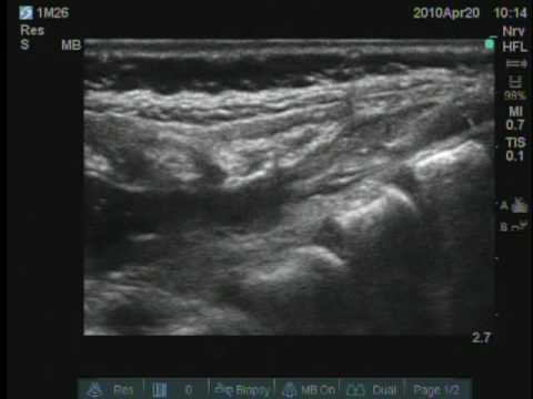 ultrasound guided steroid injection in the treatment of interdigital neuralgia