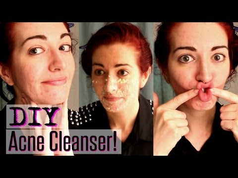 EASY ACNE CLEANSER! | Natural Treatment For Acne & Oily Skin